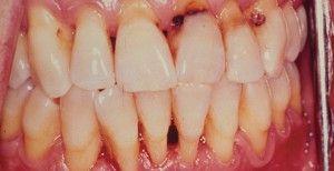Рак десны и зуба: симптомы
