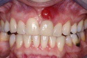 Белый прыщ на десне у взрослого над зубом