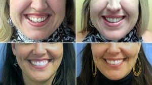 исправление деснеевой улыбки