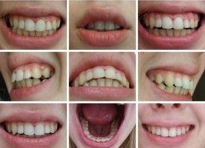 Десневая улыбка: до и после коррекции