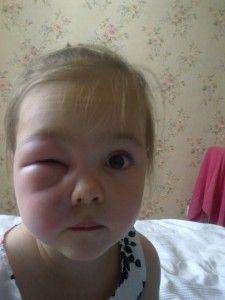 девочка с опухшей щекой