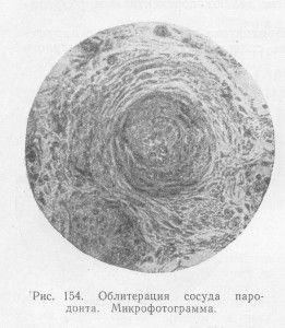 Микрофото облитерации сосуда пародонта