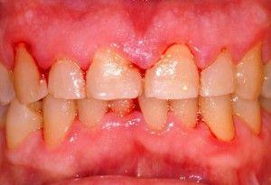 Воспаление десны около зуба: что делать, каково лечение?