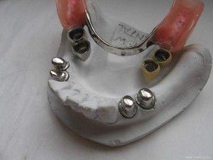 Телескопический протез