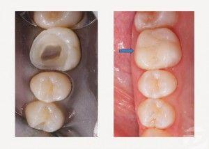 rekonstrukcija zuba