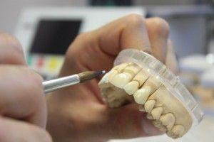 изготовление зубов