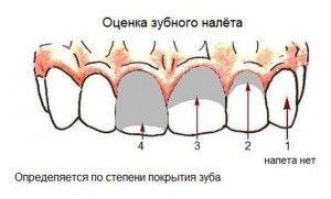 осмотр зубного налета