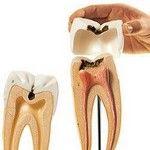 Кариес - макет зуба