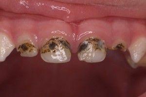 больные зубы у детей