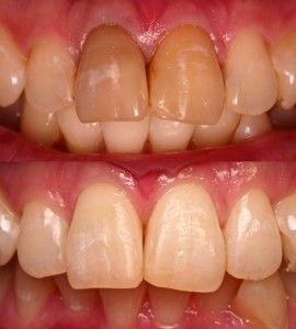 зубы-после-реминерализации