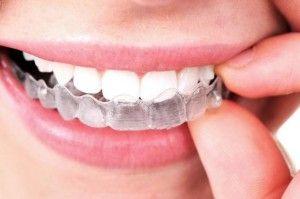 капы-для-зубов