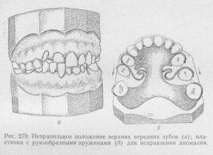 неправильное положение верхних зубов