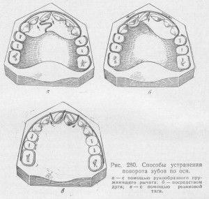 устранение поворота зубов