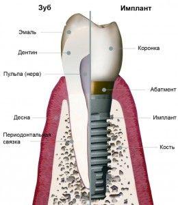 строение-зуба-и-импланта
