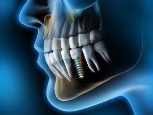 зубной-имплант-в-челюсти