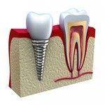 зубной-имплант