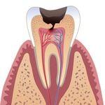 зуб пораженный периодонтитом