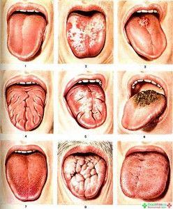 заболевания языка