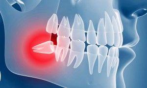 ретения зуба