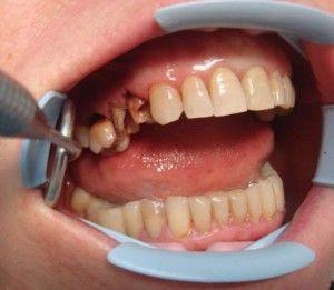 восстановление зуба от корня