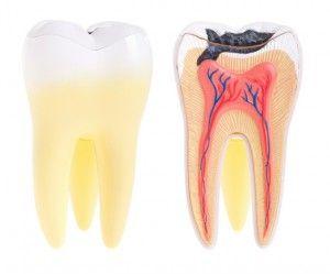 зуб пораженный кариесом