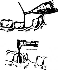 шлифовка выступающего края зуба