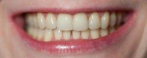 зубы после сепарации