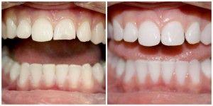 нарощенные зубы