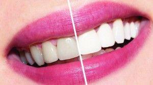 отбеливание зубов перекесью