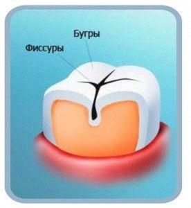 Герметизация зубов ифиссур молочных зубов: что это такое и для чего нужно