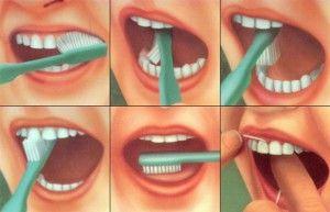 техничка чистки зубов