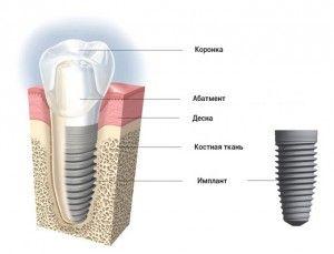 структура импланта