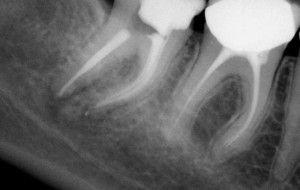 снимок воспаления корня зуба
