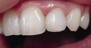 Прозрачность зубов у детей