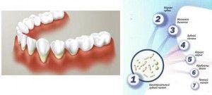 проблемы от зубного налета