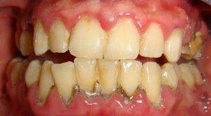черные отложения на зубах