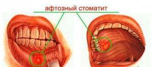 aftoznij stomatit