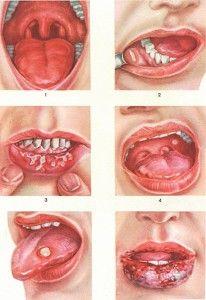 разновидности афтозного стоматита