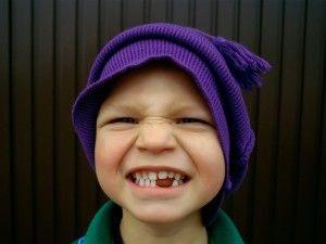 мальчик с выпавшими зубами