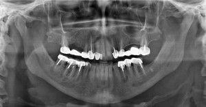 снимок зубов с мрт