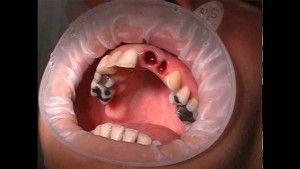 Удаление зуба: как долго заживает десна и лунка, если сложная рана