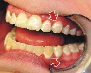 деффекты на зубах