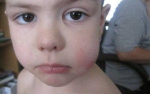 опухшая щека у ребенка