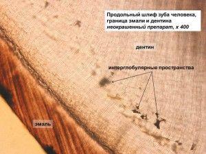 граница эмали и дентина