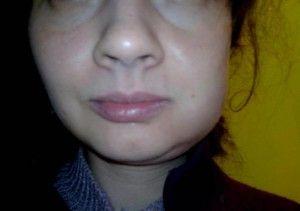 Прикусила щеку образовалась язвочка изнутри: как и чем лечить?