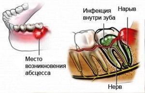 Что делать при флюсе на щеке: как лечить