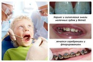 проблемы молочных зубов