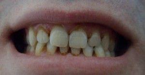 Зубной камень: как виглядит, причини возникновения и последствия