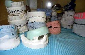 слепки зубов