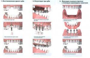 варианты имплантации